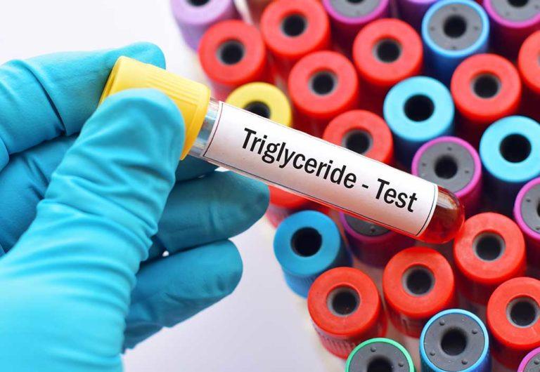 Trigliceridi alti: come orientarsi nella terapia