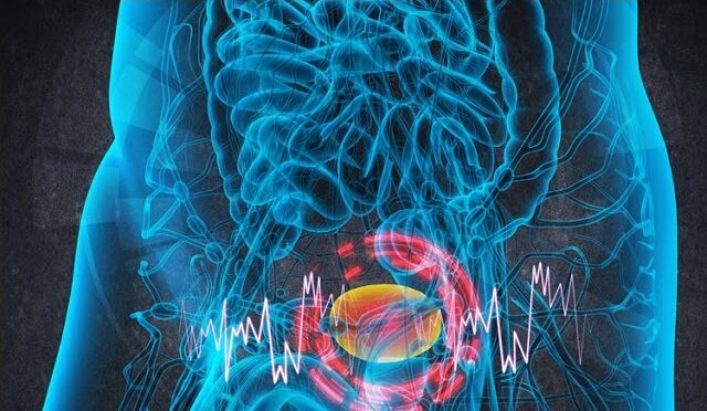 Infiammazione cronica della vescica: rischio tumore