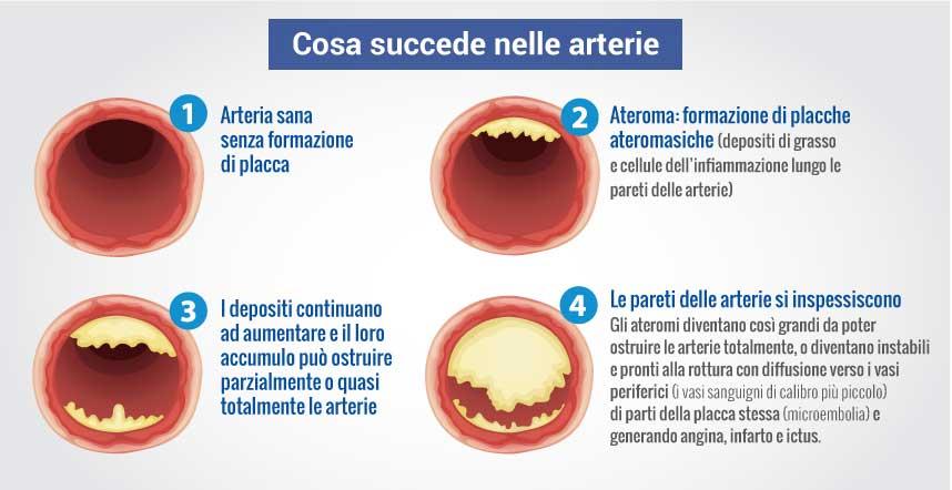Cosa succede alle arterie con il colesterolo alto