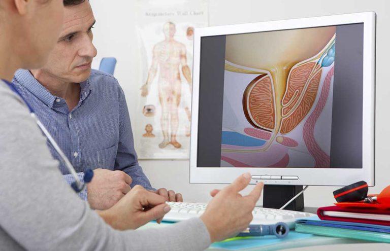 Cistite nell'uomo: cause, sintomi e cura