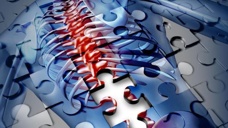 Il mal di schiena: cos'è e come guarire